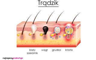 Probiotyki na trądzik